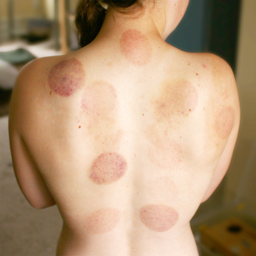 What You Need To Know: Cupping